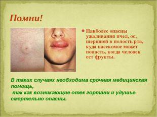Наиболее опасны ужаливания пчел, ос, шершней в полость рта, куда насекомое мо