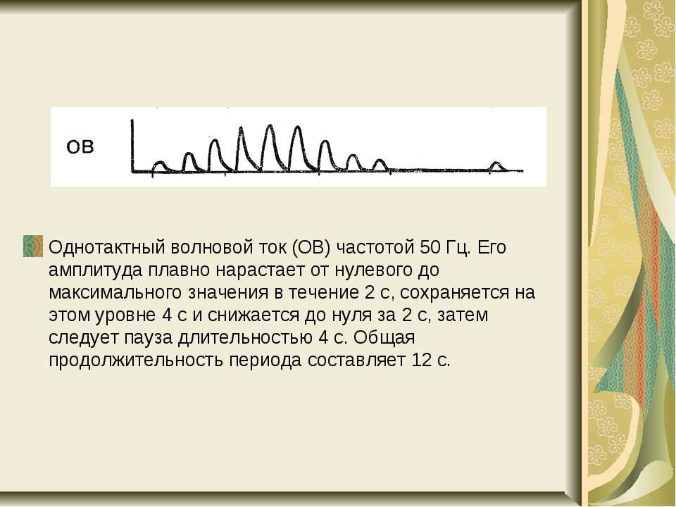 Однотактный волновой ток (ОВ) частотой 50 Гц. Его амплитуда плавно нарастает...