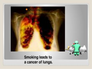 Smoking leads to a cancer of lungs.