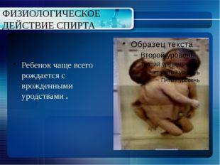 ФИЗИОЛОГИЧЕСКОЕ ДЕЙСТВИЕ СПИРТА Ребенок чаще всего рождается с врожденными ур