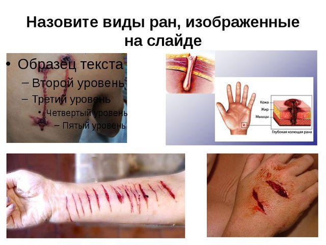 Назовите виды ран, изображенные на слайде