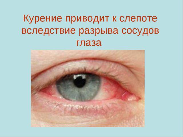 Курение приводит к слепоте вследствие разрыва сосудов глаза