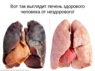 Вот так выглядит печень здорового человека от нездорового!
