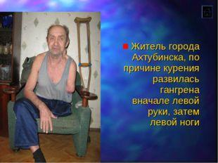Житель города Ахтубинска, по причине курения развилась гангрена вначале левой