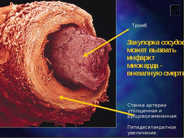 Стенка артерии утолщенная и рубцовоизмененная. Пятидесятикратное увеличение....