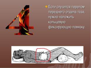 Если случился перелом переднего отдела таза, нужно наложить кольцевую фиксиру