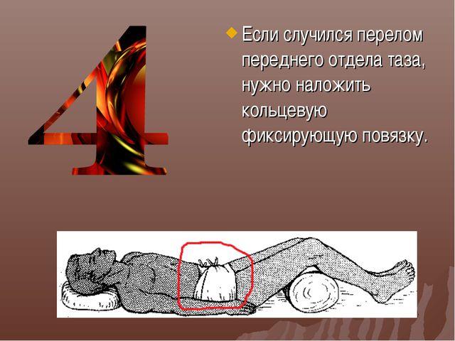 Если случился перелом переднего отдела таза, нужно наложить кольцевую фиксиру...