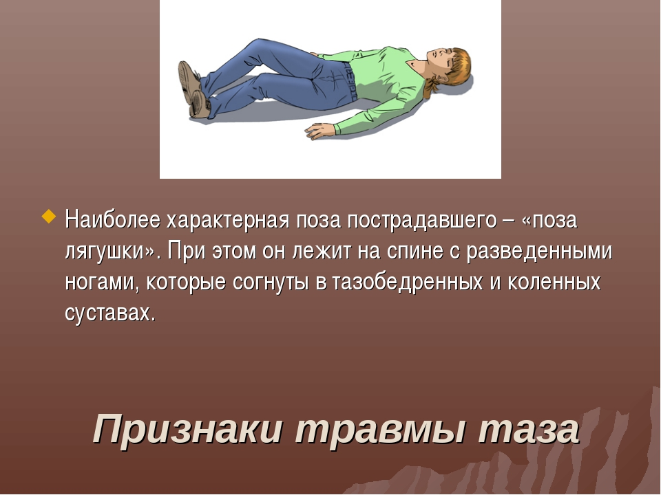 Признаки травмы таза Наиболее характерная поза пострадавшего – «поза лягушки»...