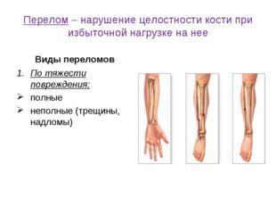 Перелом – нарушение целостности кости при избыточной нагрузке на нее Виды пер