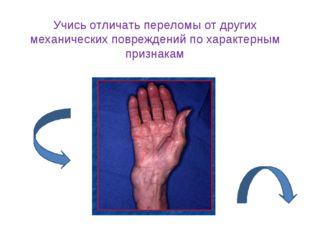 Учись отличать переломы от других механических повреждений по характерным при