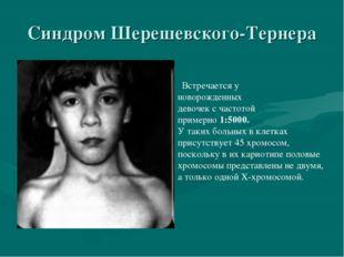 Синдром Шерешевского-Тернера Встречается у новорожденных девочек с частотой п