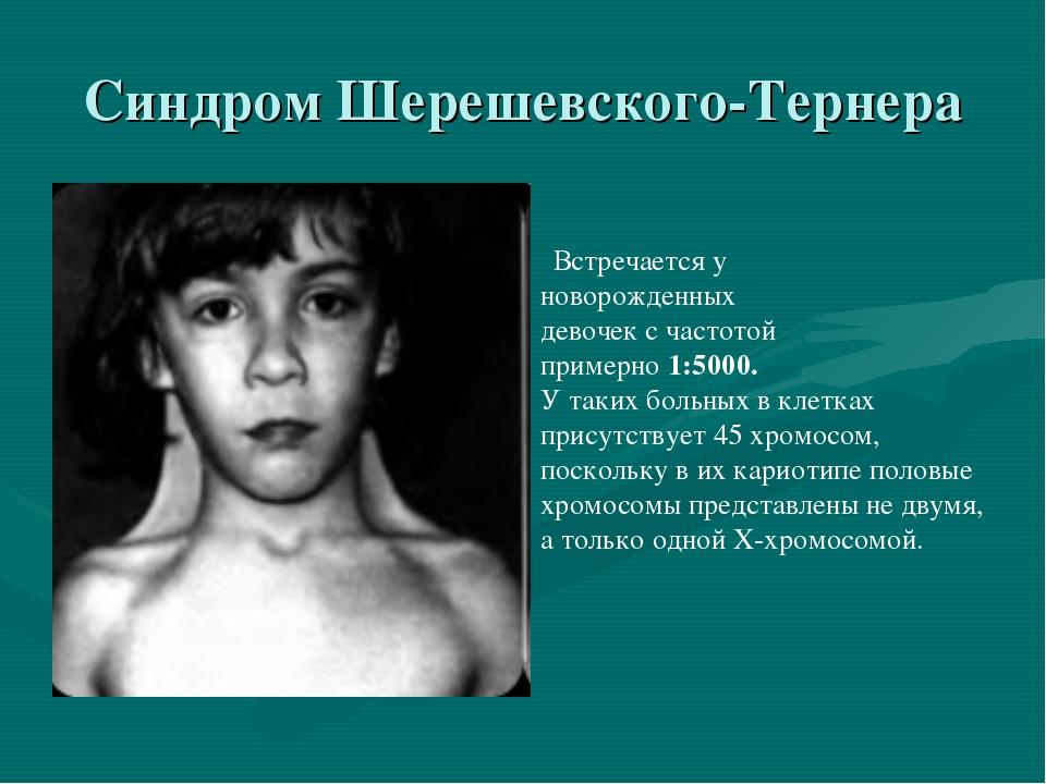 Синдром Шерешевского-Тернера Встречается у новорожденных девочек с частотой п...
