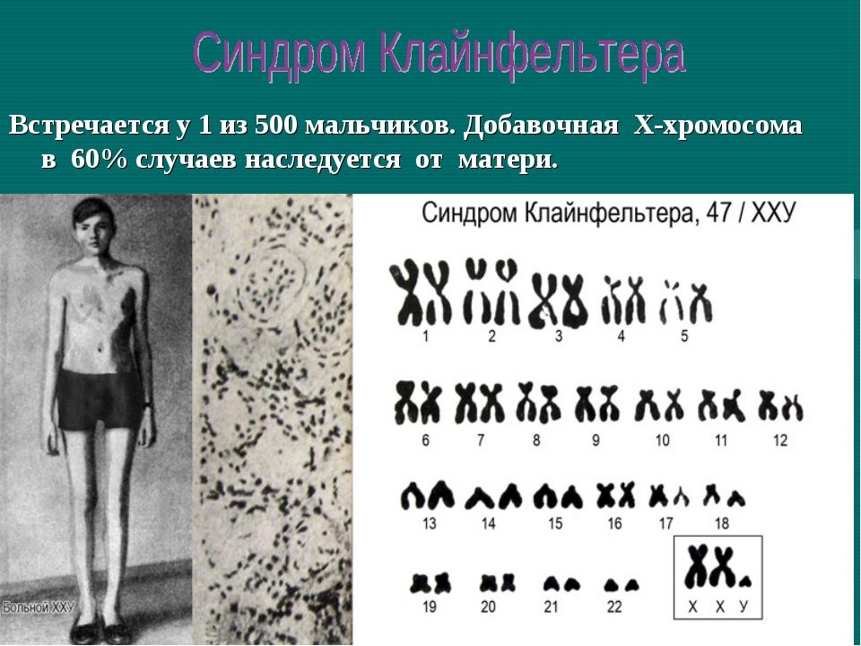 Встречается у 1 из 500 мальчиков. Добавочная Х-хромосома в 60% случаев наслед...