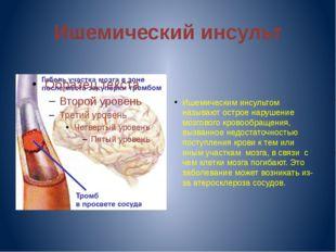 Ишемический инсульт Ишемическим инсультом называют острое нарушение мозгового