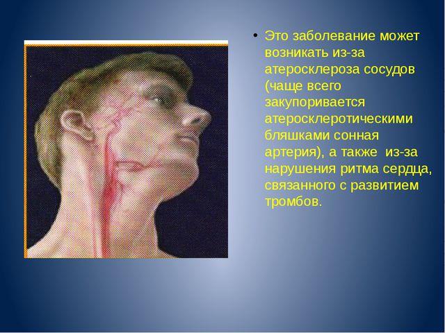 Это заболевание может возникать из-за атеросклероза сосудов (чаще всего заку...