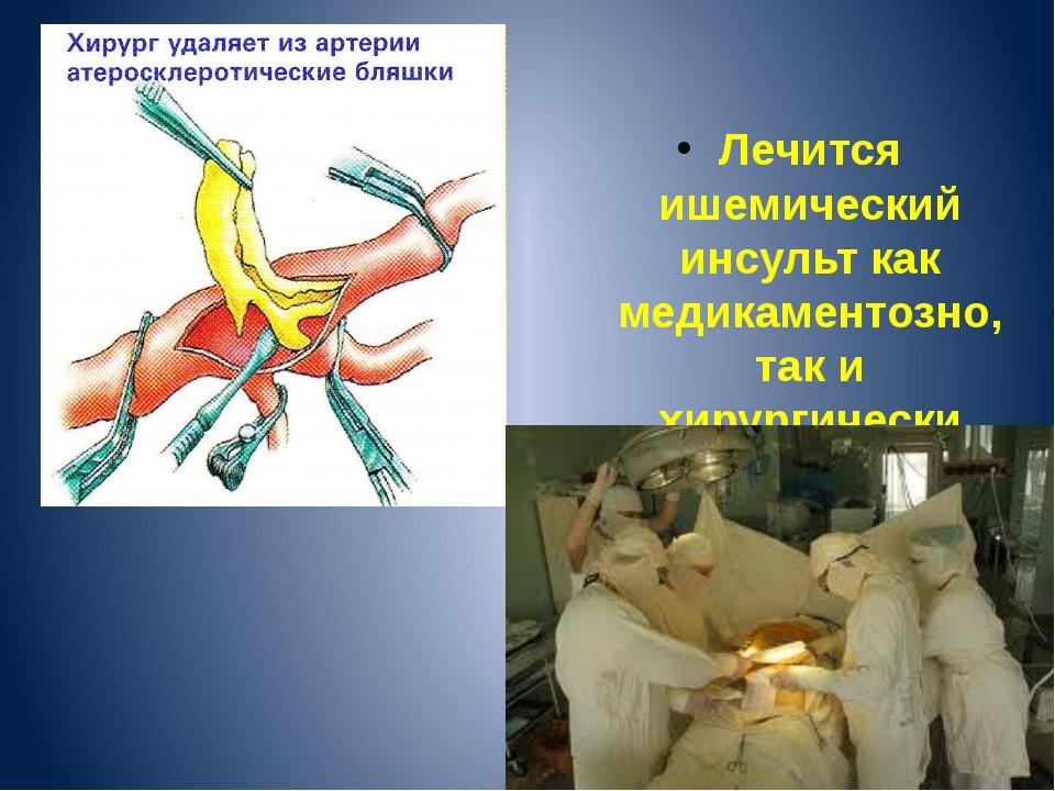 Лечится ишемический инсульт как медикаментозно, так и хирургически