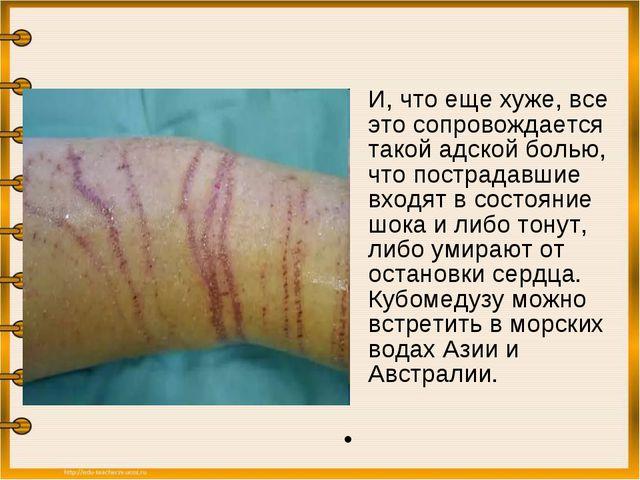 И, что еще хуже, все это сопровождается такой адской болью, что пострадавшие...