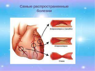 Самые распространенные болезни 1. Болезни сердца – бляшки на сердце образуютс