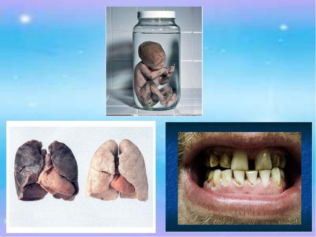 Что зубы станут безобразными, а будущий ребенок не сможет родиться здоровым…