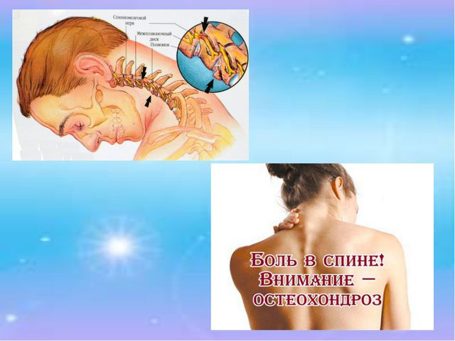 3. Остеохондроз. Появляются боли в спине, в области шеи. Грыжи дисков еще нет...