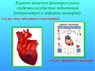 Курение является фактором риска сердечно-сосудистых заболеваний (атеросклероз