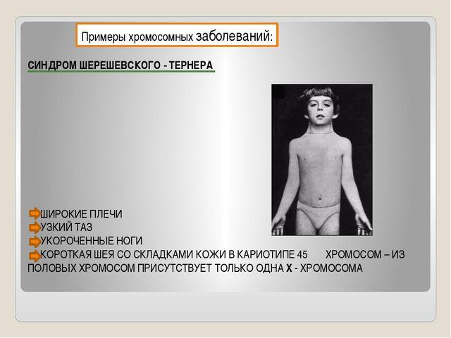 Примеры хромосомных заболеваний: СИНДРОМ ШЕРЕШЕВСКОГО - ТЕРНЕРА ШИРОКИЕ ПЛЕЧИ...