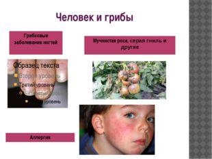 Человек и грибы Грибковые заболевания ногтей Аллергия Мучнистаяроса,серая гни