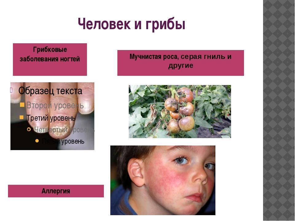 Человек и грибы Грибковые заболевания ногтей Аллергия Мучнистаяроса,серая гни...