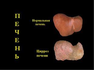 Нормальная печень Цирроз печени
