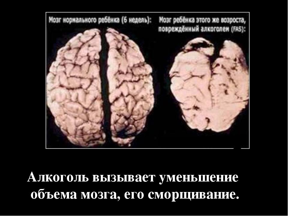 Алкоголь вызывает уменьшение объема мозга, его сморщивание.