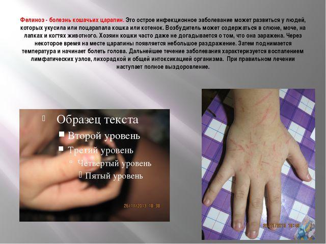 Фелиноз - болезнь кошачьих царапин. Это острое инфекционное заболевание может...