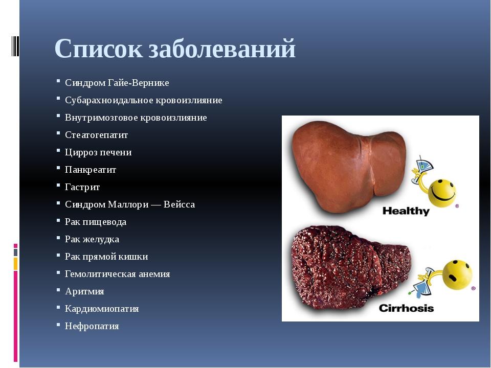 Список заболеваний Синдром Гайе-Вернике Субарахноидальное кровоизлияние Внутр...