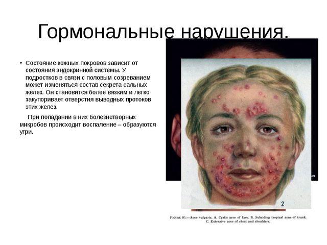 Гормональные нарушения. Состояние кожных покровов зависит от состояния эндокр...