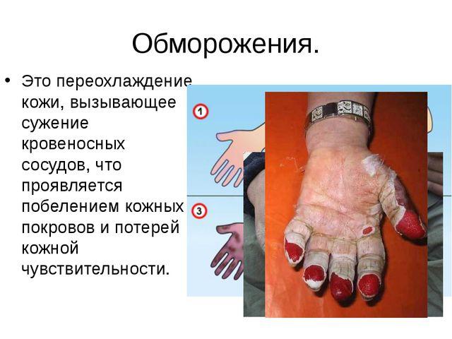 Обморожения. Это переохлаждение кожи, вызывающее сужение кровеносных сосудов,...