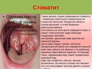 Стоматит Самая ранняя стадия образования стоматита - появление небольшого пок