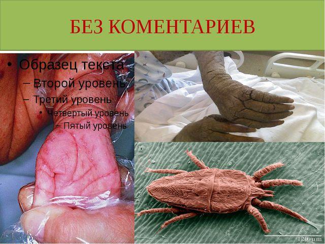 БЕЗ КОМЕНТАРИЕВ