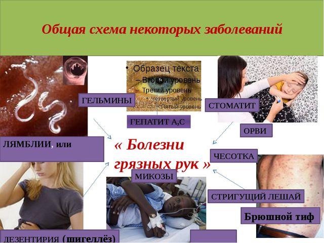 Общая схема некоторых заболеваний « Болезни грязных рук » ГЕПАТИТ А,C ЛЯМБЛИ...