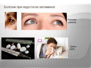 Болезни при недостатке витаминов Куриная слепота Грипп,ОРЗ