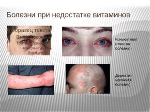 Болезни при недостатке витаминов Коньюктивит (глазная болезнь) Дерматиты(кожн