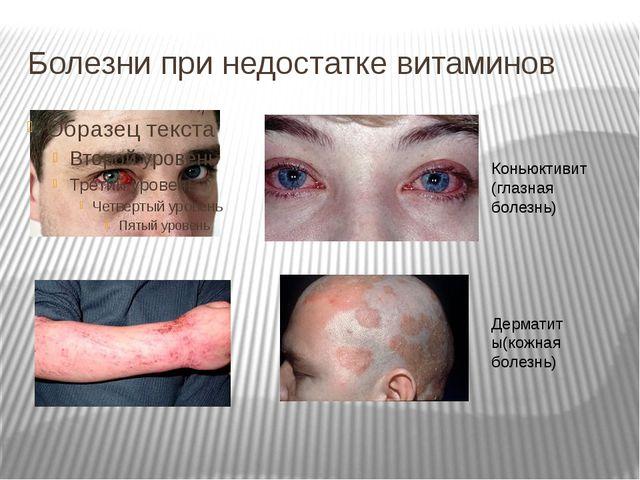 Болезни при недостатке витаминов Коньюктивит (глазная болезнь) Дерматиты(кожн...