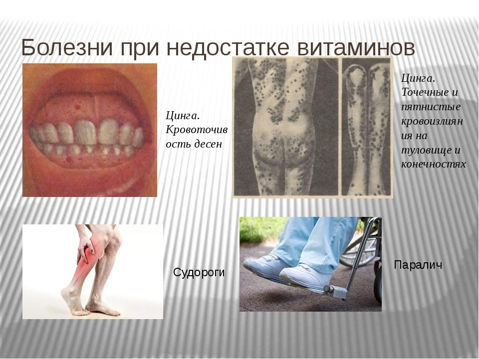 Болезни при недостатке витаминов Цинга. Кровоточивость десен Цинга. Точечные...