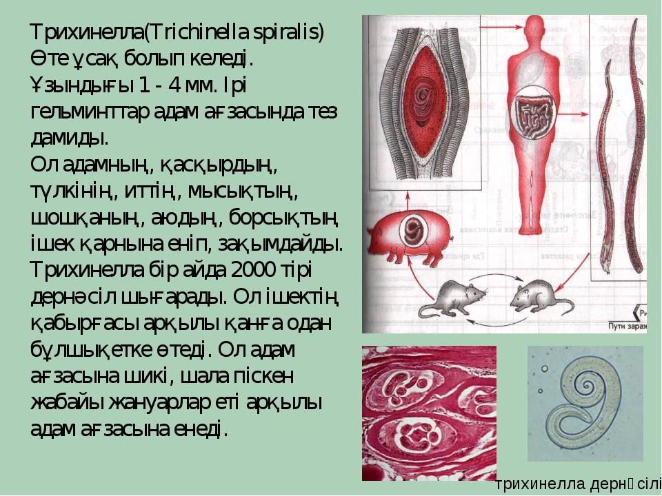 Трихинелла(Trichinella spiralis) Өте ұсақ болып келеді. Ұзындығы 1 - 4 мм. Ір...