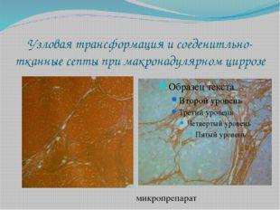 Узловая трансформация и соеденитльно-тканные септы при макронадулярном цирроз