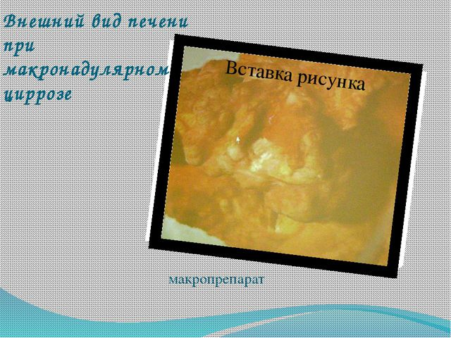 Внешний вид печени при макронадулярном циррозе макропрепарат