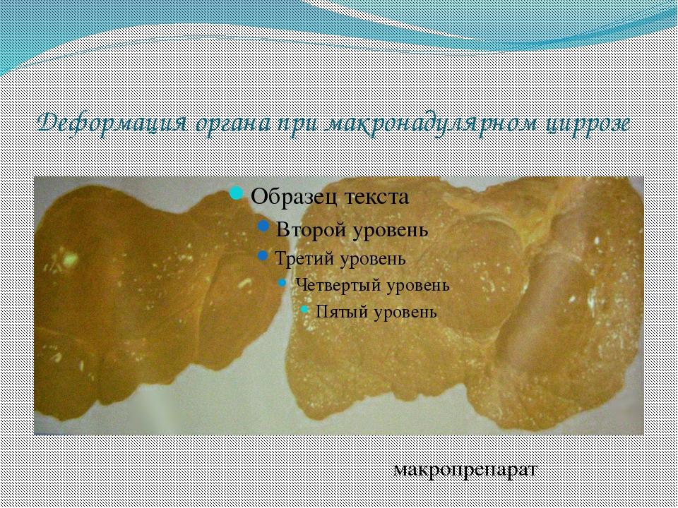Деформация органа при макронадулярном циррозе макропрепарат