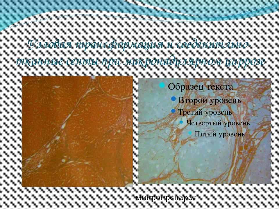 Узловая трансформация и соеденитльно-тканные септы при макронадулярном цирроз...