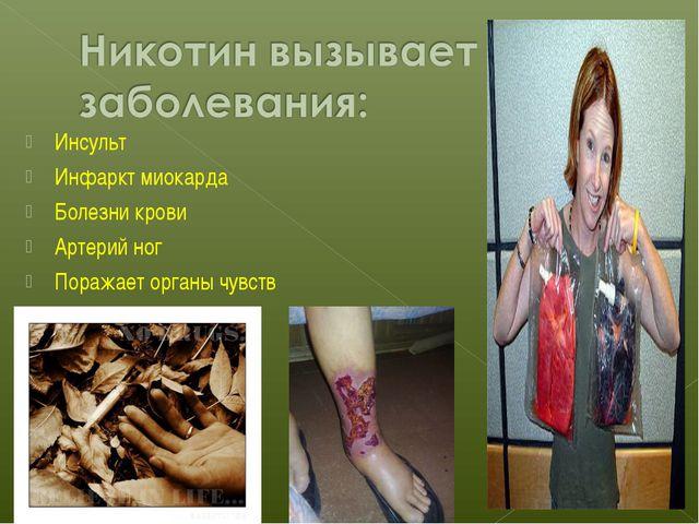 Инсульт Инфаркт миокарда Болезни крови Артерий ног Поражает органы чувств