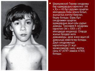 Шерешевский-Тернер синдромы бар адамдардың кариотипі: (44 + Х)= = 45 бұл ауру