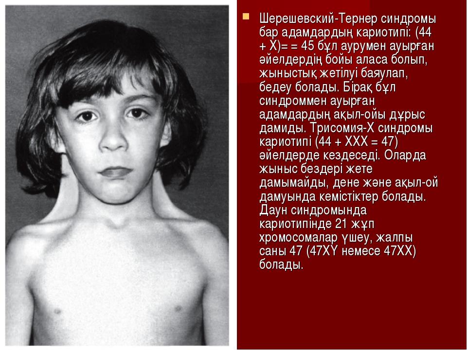 Шерешевский-Тернер синдромы бар адамдардың кариотипі: (44 + Х)= = 45 бұл ауру...
