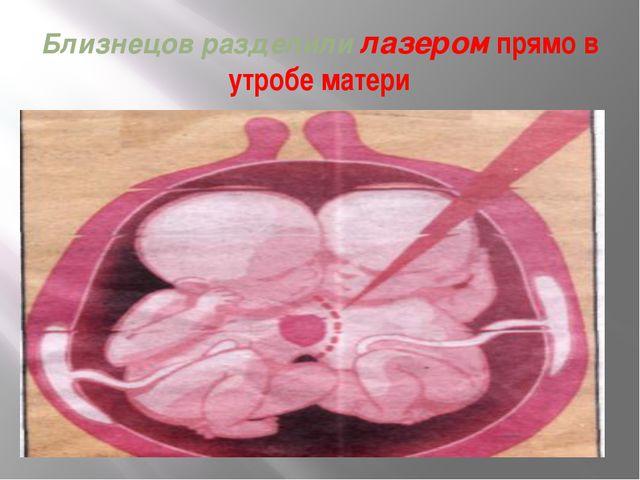 Близнецов разделили лазером прямо в утробе матери